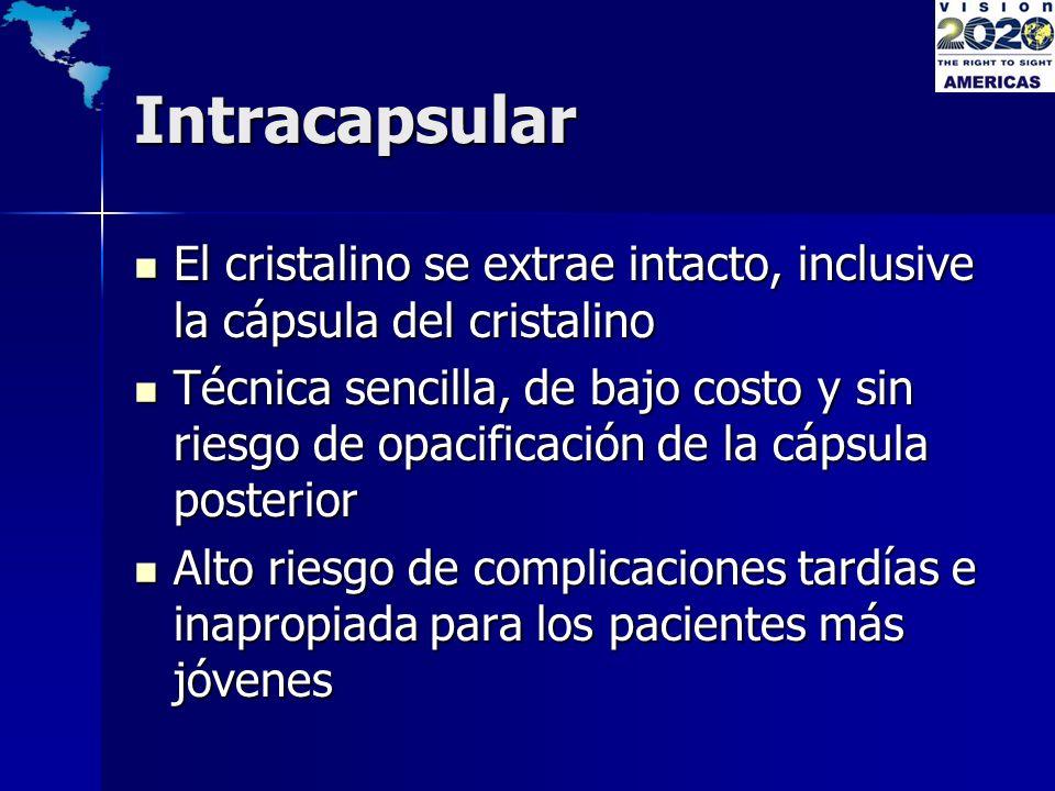 Intracapsular El cristalino se extrae intacto, inclusive la cápsula del cristalino El cristalino se extrae intacto, inclusive la cápsula del cristalin