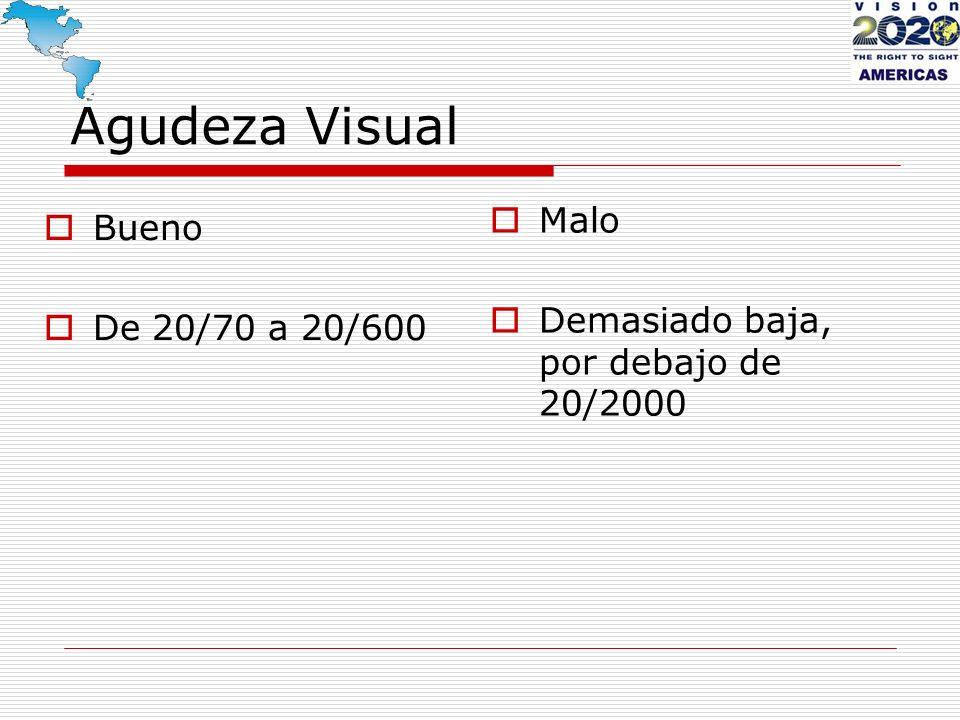 Agudeza Visual Bueno De 20/70 a 20/600 Malo Demasiado baja, por debajo de 20/2000