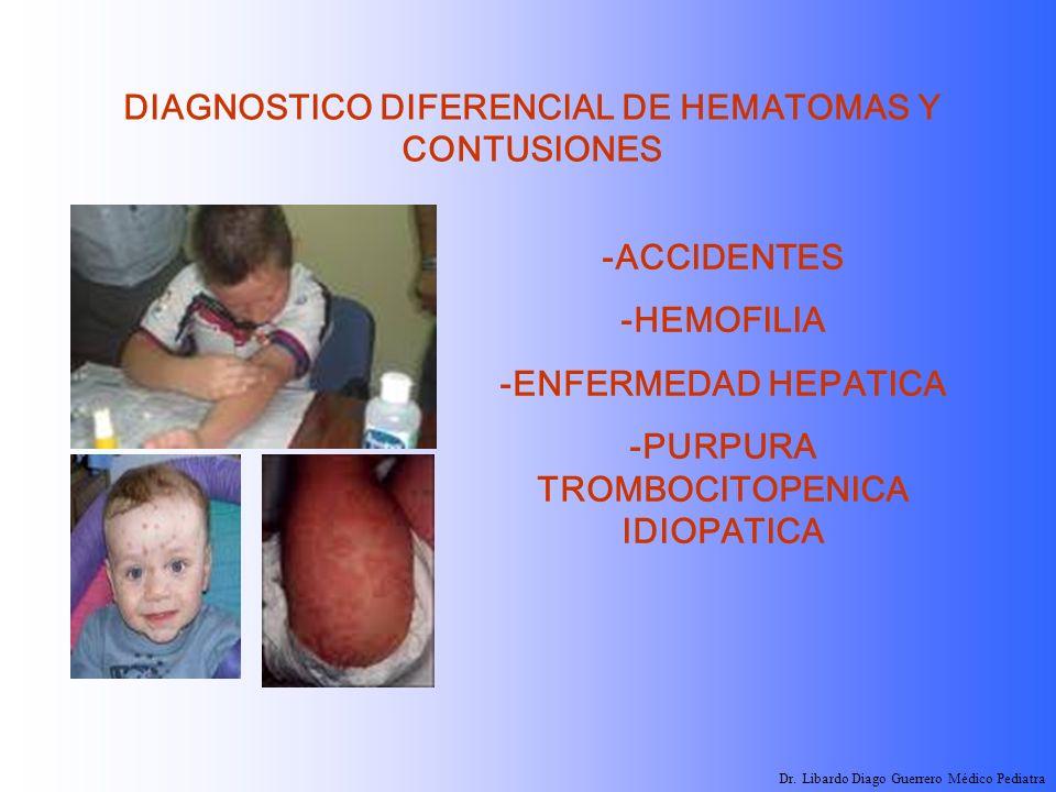 DIAGNOSTICO DIFERENCIAL DE HEMATOMAS Y CONTUSIONES -ACCIDENTES -HEMOFILIA -ENFERMEDAD HEPATICA -PURPURA TROMBOCITOPENICA IDIOPATICA Dr. Libardo Diago