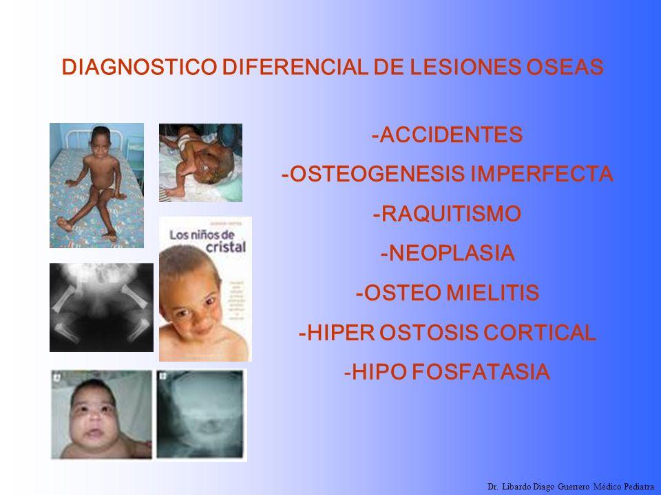 DIAGNOSTICO DIFERENCIAL DE LESIONES OSEAS -ACCIDENTES -OSTEOGENESIS IMPERFECTA -RAQUITISMO -NEOPLASIA -OSTEO MIELITIS -HIPER OSTOSIS CORTICAL -HIPO FO