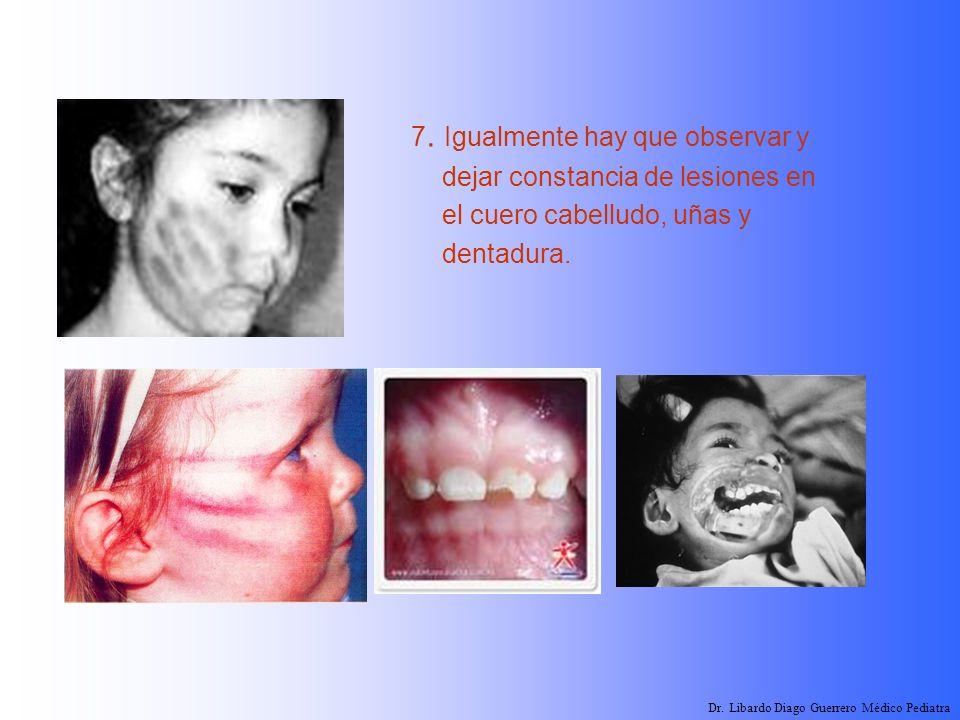 7. Igualmente hay que observar y dejar constancia de lesiones en el cuero cabelludo, uñas y dentadura. Dr. Libardo Diago Guerrero Médico Pediatra