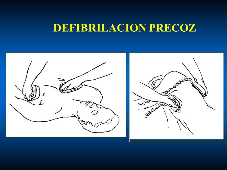 DEFIBRILACION PRECOZ