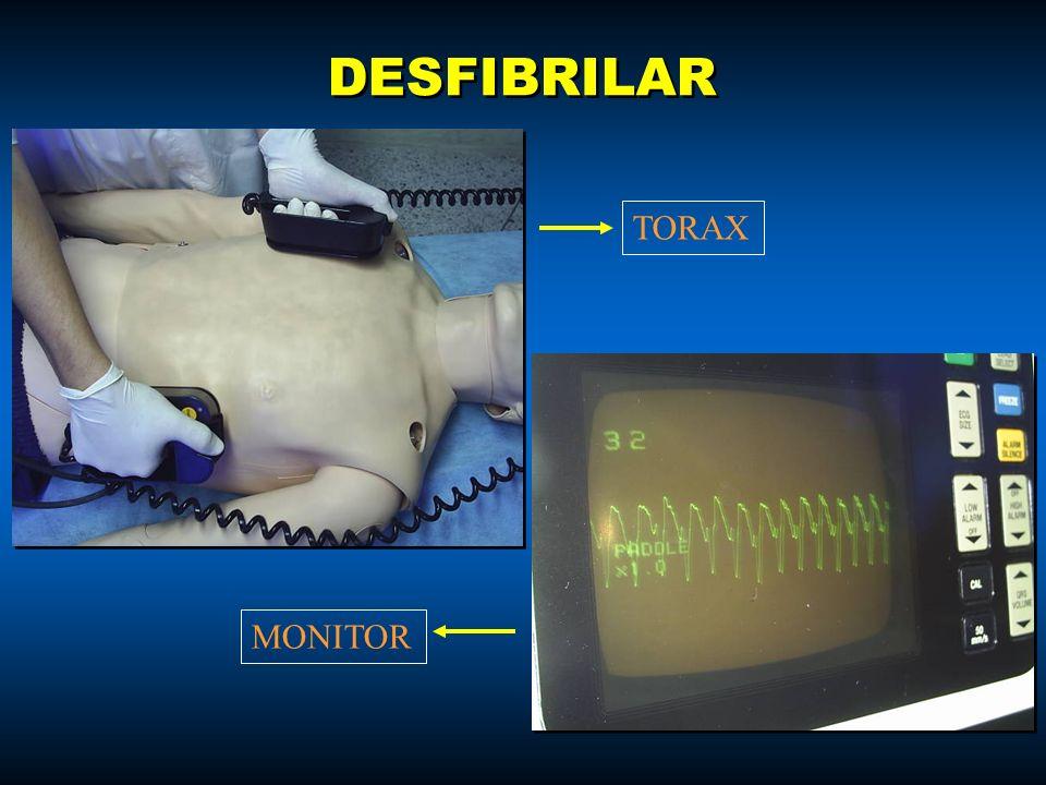 DESFIBRILAR TORAX MONITOR