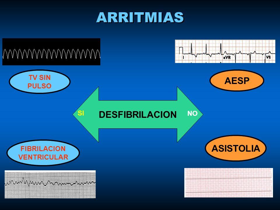 ARRITMIAS DESFIBRILACION SI NO TV SIN PULSO FIBRILACION VENTRICULAR AESP ASISTOLIA