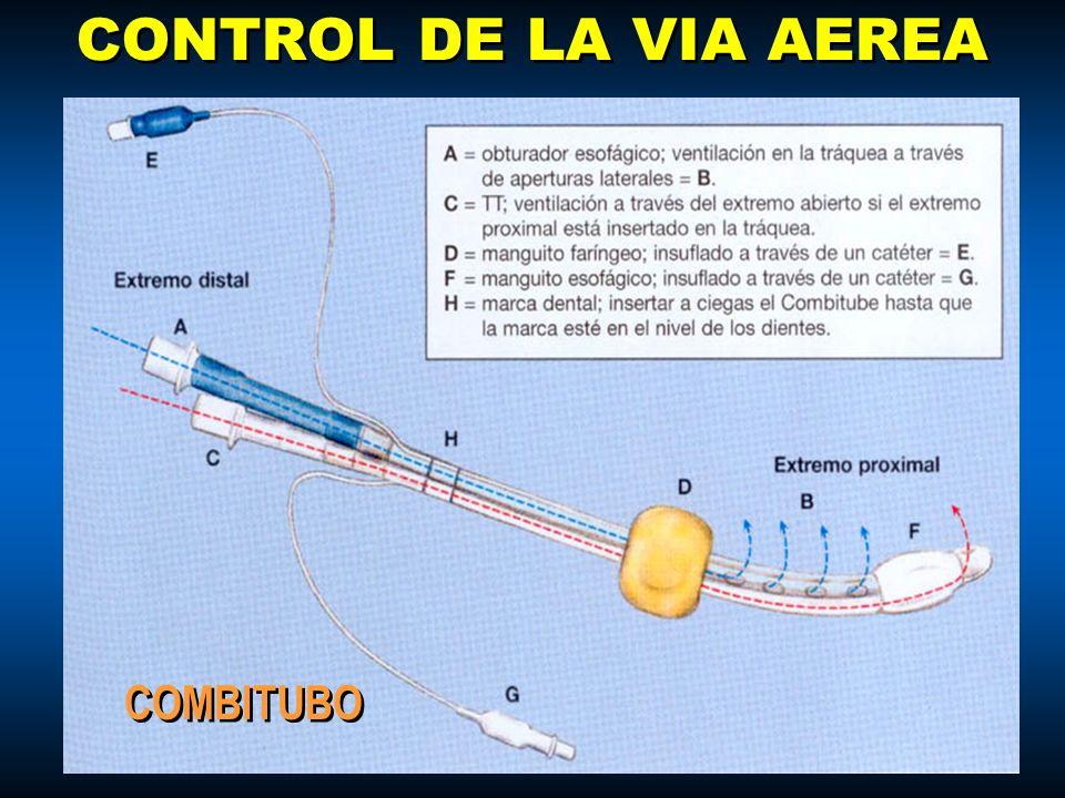CONTROL DE LA VIA AEREA COMBITUBO