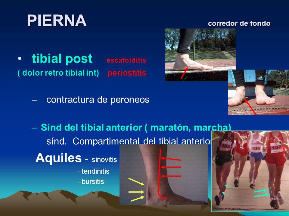 PIERNA corredor de fondo PIERNA corredor de fondo tibial post escafoiditis ( dolor retro tibial int) periostitis – contractura de peroneos –Sind del t
