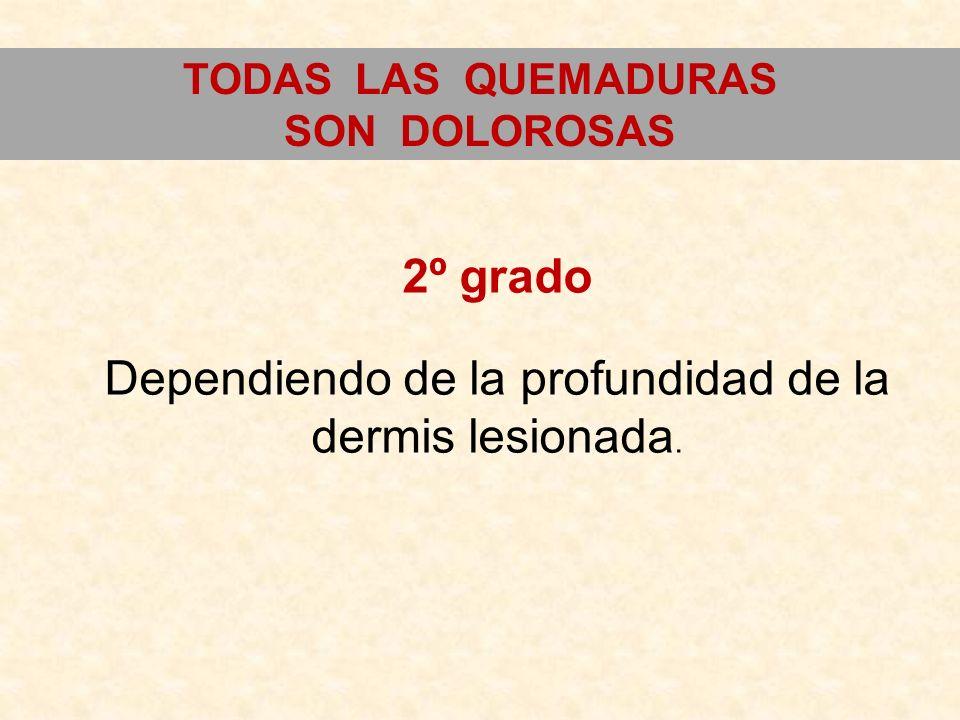 TODAS LAS QUEMADURAS SON DOLOROSAS 2º grado Dependiendo de la profundidad de la dermis lesionada.