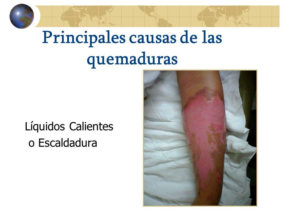 Principales causas de las quemaduras Líquidos Calientes o Escaldadura