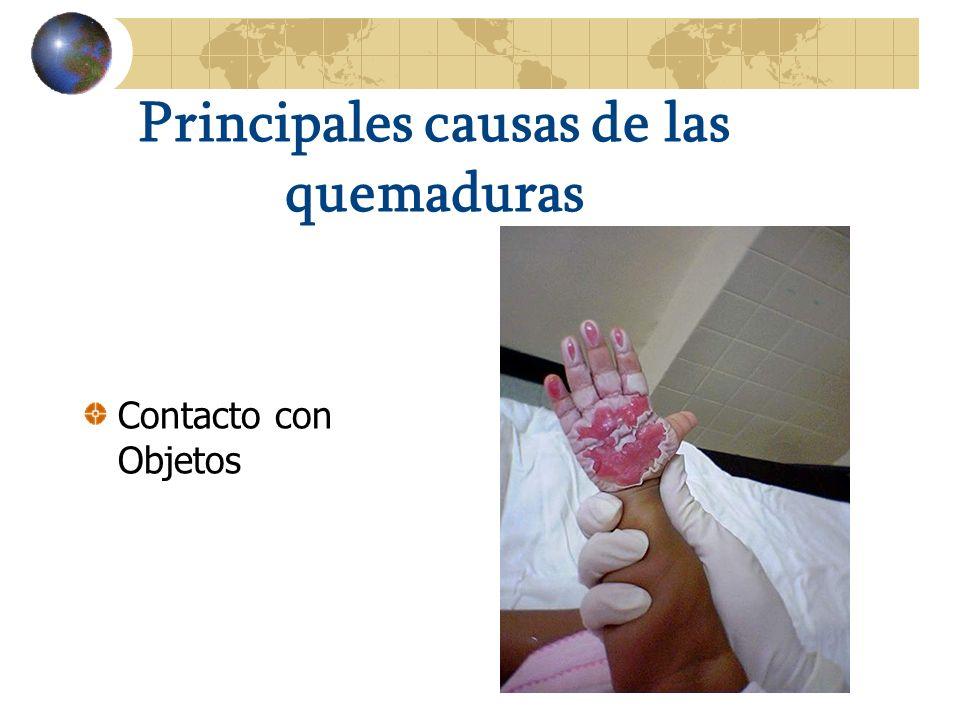 Principales causas de las quemaduras Contacto con Objetos