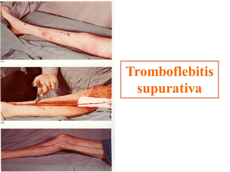 Tromboflebitis supurativa