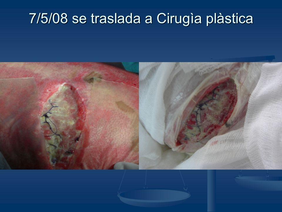7/5/08 se traslada a Cirugìa plàstica