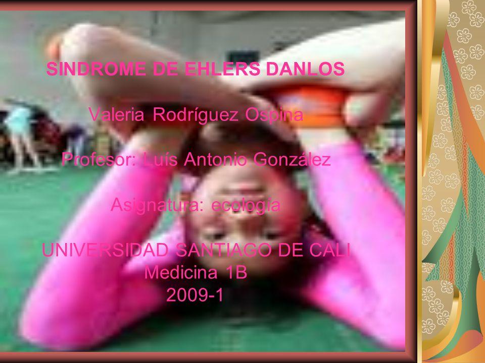 SINDROME DE EHLERS DANLOS Valeria Rodríguez Ospina Profesor: Luís Antonio González Asignatura: ecología UNIVERSIDAD SANTIAGO DE CALI Medicina 1B 2009-