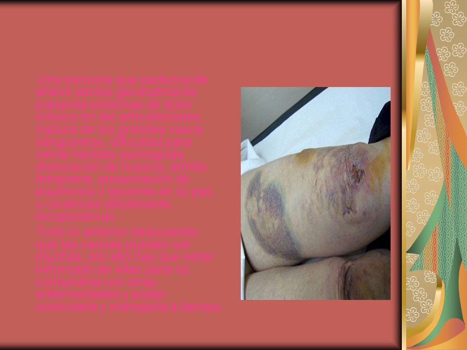 Una persona que padezca de ehlers danlos generalmente presenta síntomas de dolor crónico en las articulaciones, ruptura de los grandes vasos sanguíneo