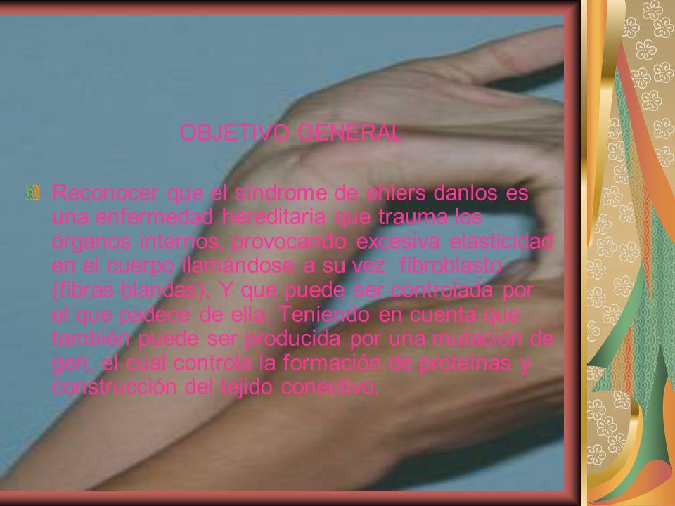 OBJETIVO GENERAL Reconocer que el síndrome de ehlers danlos es una enfermedad hereditaria que trauma los órganos internos, provocando excesiva elastic