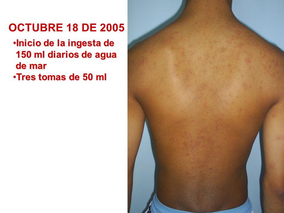 NOVIEMBRE 8 DE 2005 CRISIS CURATIVA Inicio de aplicación tópica, todos los días después del baño, dejando secar.