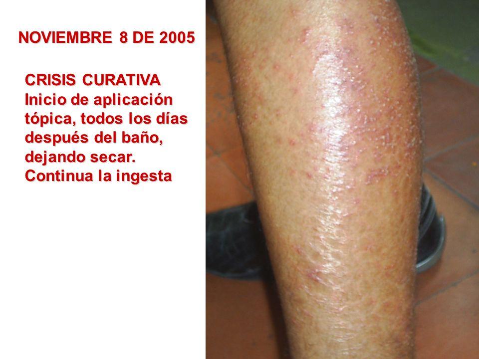 NOVIEMBRE 8 DE 2005 CRISIS CURATIVA Inicio de aplicación tópica, todos los días después del baño, dejando secar. Continua la ingesta