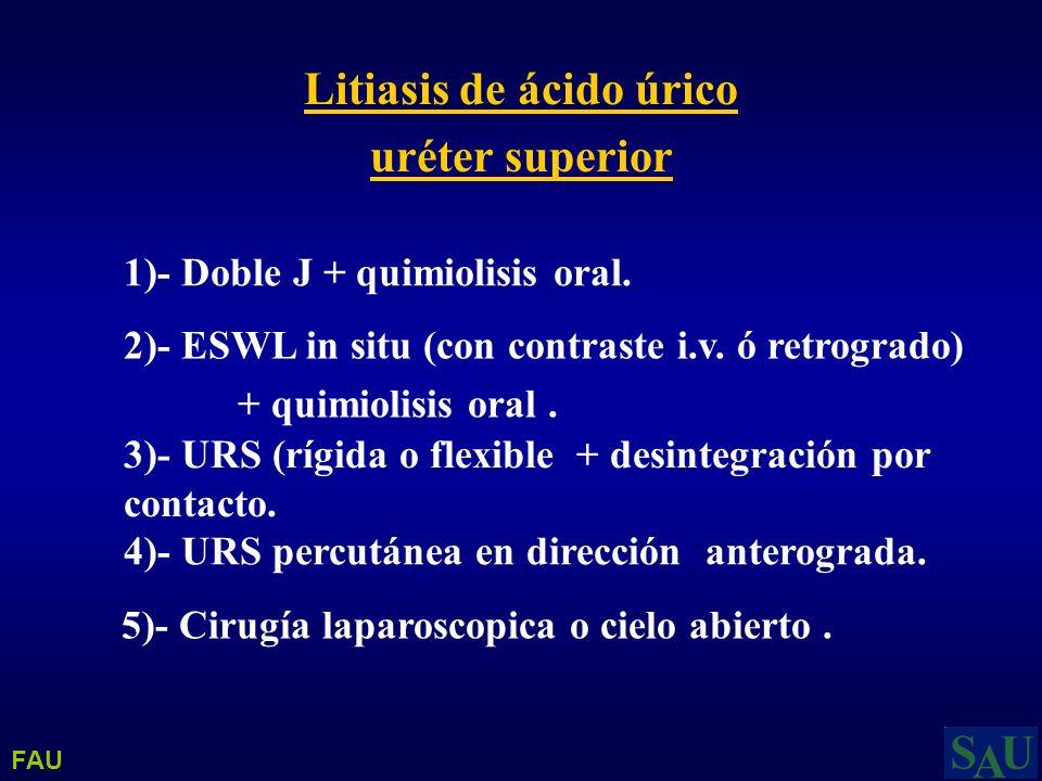 Litiasis de ácido úrico uréter superior 1)- Doble J + quimiolisis oral. 2)- ESWL in situ (con contraste i.v. ó retrogrado) + quimiolisis oral. 4)- URS
