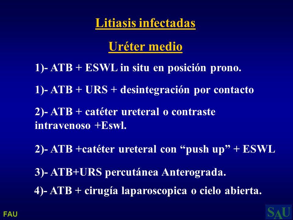 Litiasis infectadas Uréter medio 1)- ATB + ESWL in situ en posición prono. 1)- ATB + URS + desintegración por contacto 2)- ATB + catéter ureteral o co