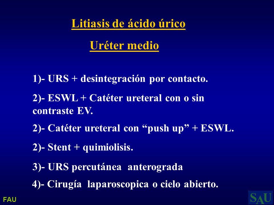 Litiasis de ácido úrico Uréter medio 1)- URS + desintegración por contacto. 2)- ESWL + Catéter ureteral con o sin contraste EV. 2)- Catéter ureteral c