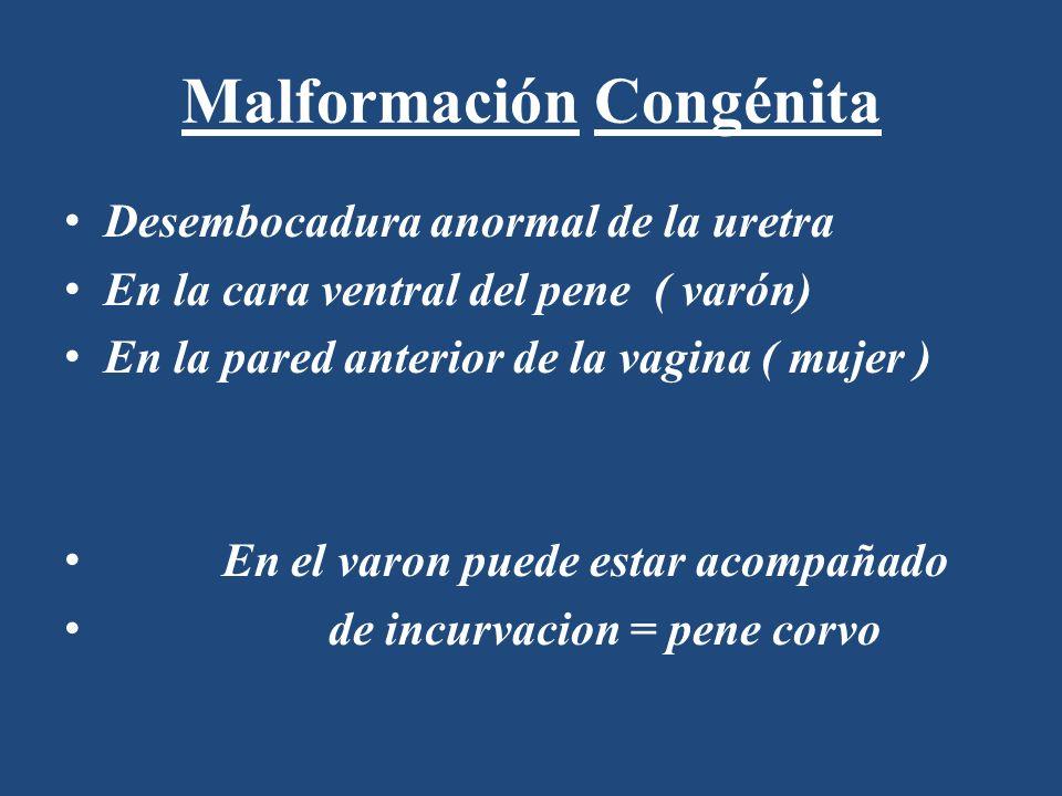 Malformación Congénita Desembocadura anormal de la uretra En la cara ventral del pene ( varón) En la pared anterior de la vagina ( mujer ) En el varon