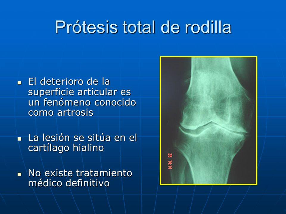 Prótesis total de rodilla El deterioro de la superficie articular es un fenómeno conocido como artrosis El deterioro de la superficie articular es un