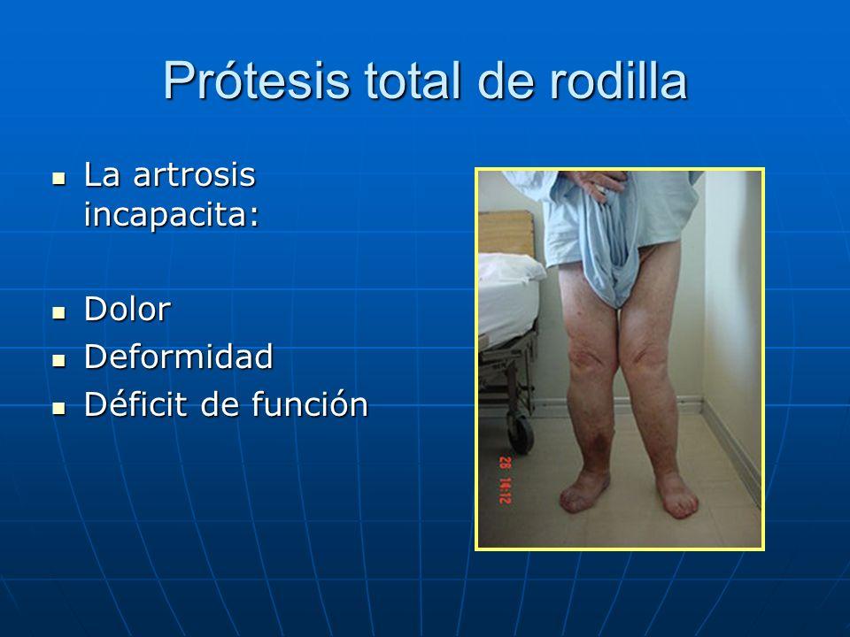 Prótesis total de rodilla La artrosis incapacita: La artrosis incapacita: Dolor Dolor Deformidad Deformidad Déficit de función Déficit de función