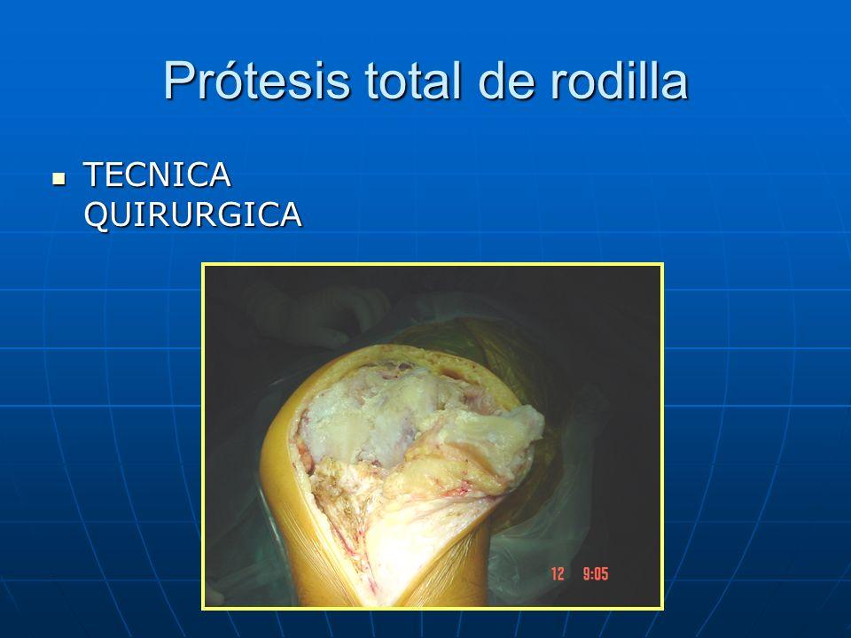 Prótesis total de rodilla TECNICA QUIRURGICA TECNICA QUIRURGICA