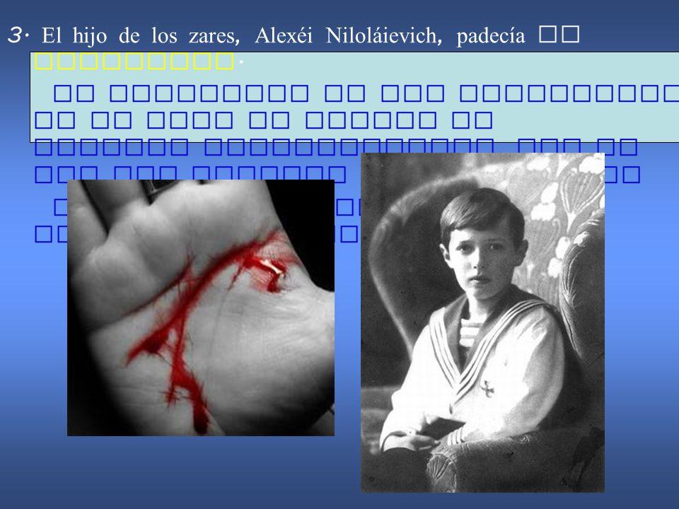 3. El hijo de los zares, Alexéi Nilol á ievich, padecía de hemofilia. La hemofilia es una enfermedad en la cual la sangre no coagula correctamente, po