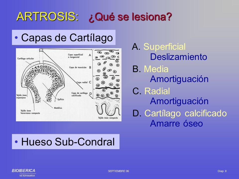 A. Superficial Deslizamiento B. Media Amortiguación C. Radial Amortiguación D. Cartílago calcificado Amarre óseo Capas de Cartílago ¿Qué se lesiona? A
