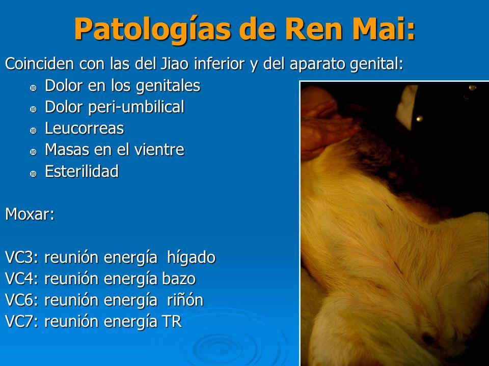 Patologías de Ren Mai: Coinciden con las del Jiao inferior y del aparato genital: Dolor en los genitales Dolor en los genitales Dolor peri-umbilical D