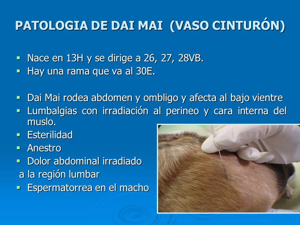 PATOLOGIA DE DAI MAI (VASO CINTURÓN) Nace en 13H y se dirige a 26, 27, 28VB. Nace en 13H y se dirige a 26, 27, 28VB. Hay una rama que va al 30E. Hay u