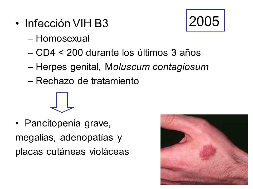 Pruebas diagnósticas Linfocitos CD4: 30/mm 3 CVP-VIH 6.000.000 cop Serología de leishmania: 1/640 Aspirado de médula ósea PAAF de adenopatía Biopsia cutánea Leishmaniasis Kaposi