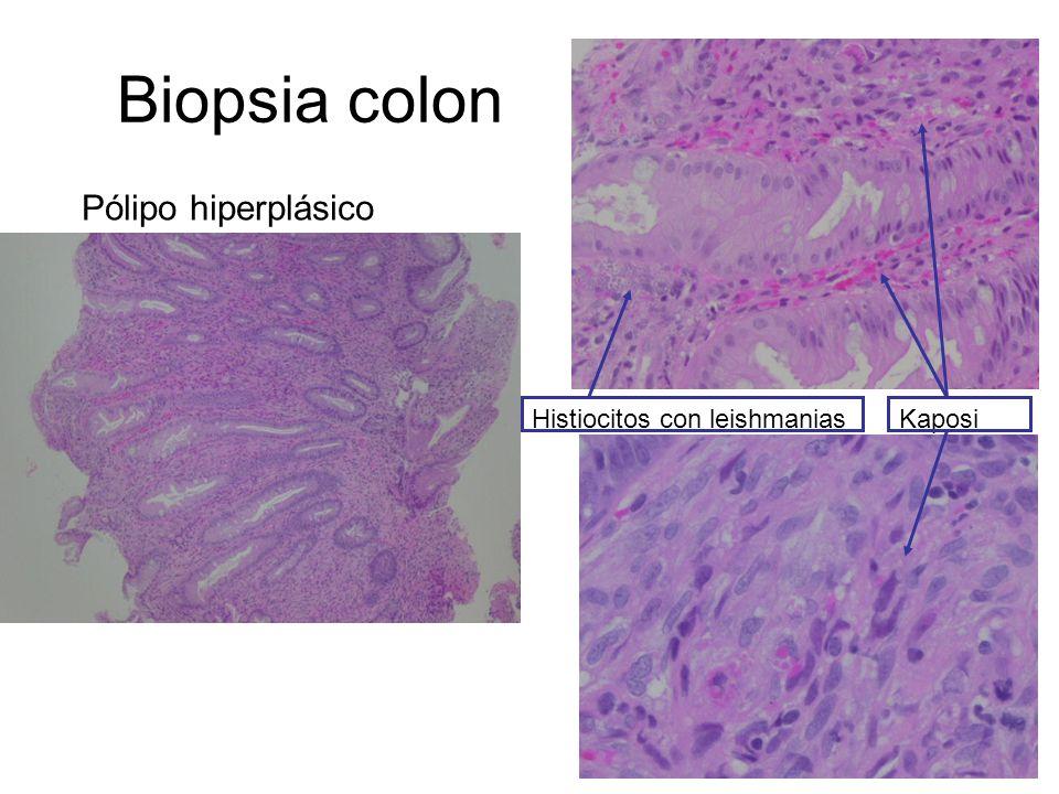 Leishmaniasis visceral: Recidivas durante profilaxis secundaria con Ambisome ® No recidivan los que recuperan CD4+ Molina I et al.