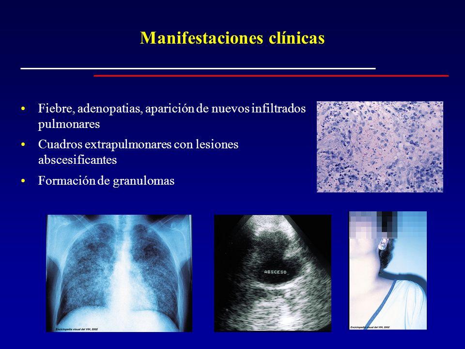 Manifestaciones clínicas Fiebre, adenopatias, aparición de nuevos infiltrados pulmonares Cuadros extrapulmonares con lesiones abscesificantes Formació