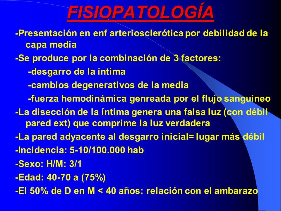 FISIOPATOLOGÍA -Presentación en enf arteriosclerótica por debilidad de la capa media -Se produce por la combinación de 3 factores: -desgarro de la ínt