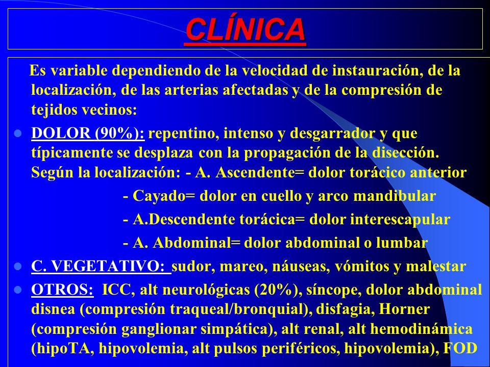 CLÍNICA Es variable dependiendo de la velocidad de instauración, de la localización, de las arterias afectadas y de la compresión de tejidos vecinos: