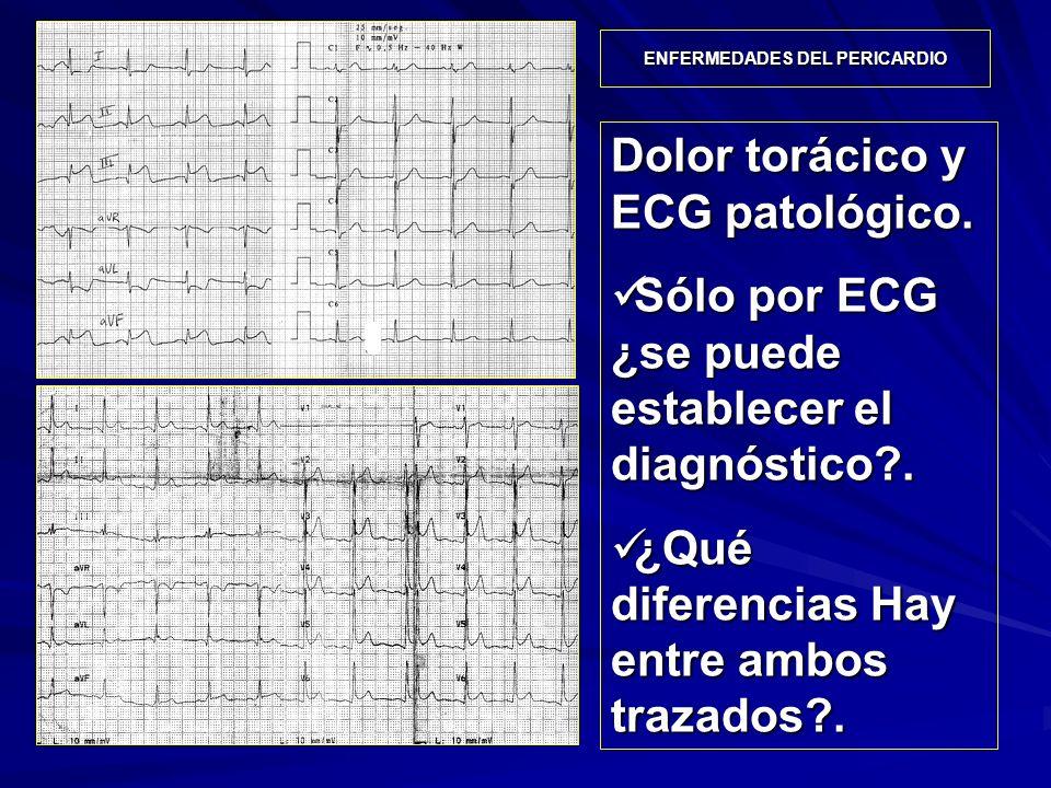 Dolor torácico y ECG patológico. Sólo por ECG ¿se puede establecer el diagnóstico?. Sólo por ECG ¿se puede establecer el diagnóstico?. ¿Qué diferencia