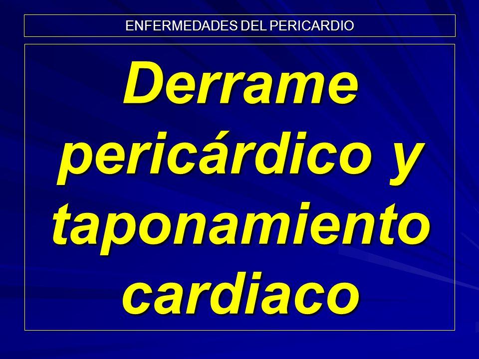 Derrame pericárdico y taponamiento cardiaco