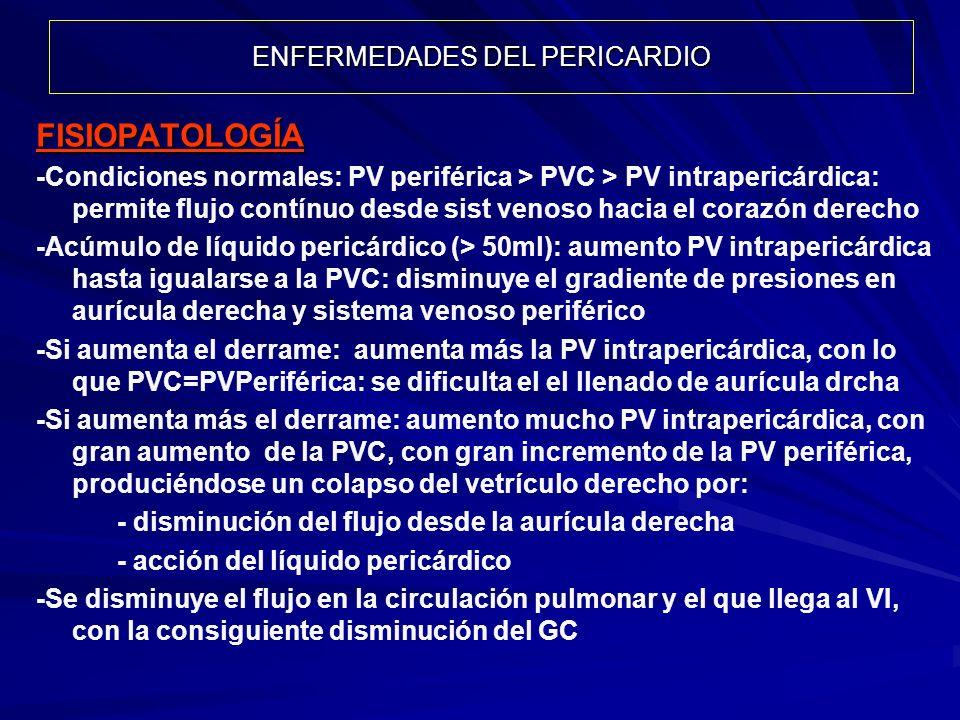 ENFERMEDADES DEL PERICARDIO FISIOPATOLOGÍA -Condiciones normales: PV periférica > PVC > PV intrapericárdica: permite flujo contínuo desde sist venoso