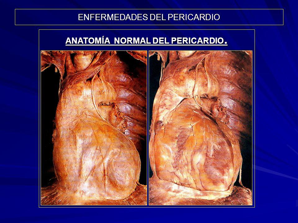 ENFERMEDADES DEL PERICARDIO ANATOMÍA NORMAL DEL PERICARDIO.