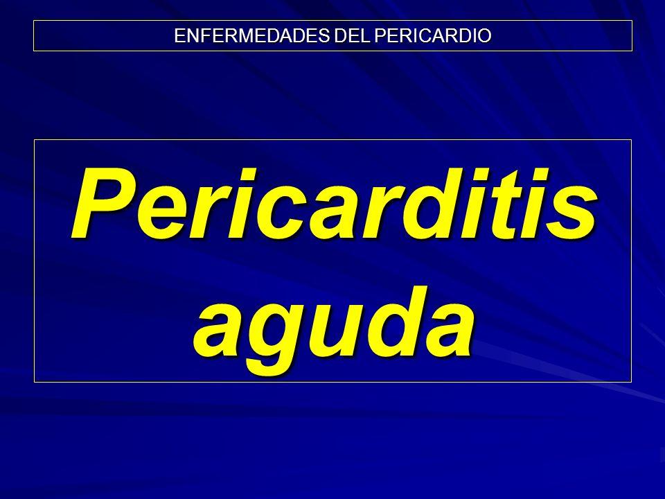 ENFERMEDADES DEL PERICARDIO Pericarditis aguda