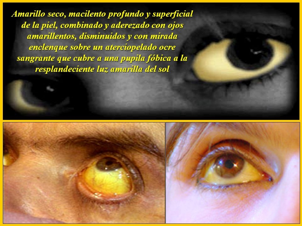 Amarillo seco, macilento profundo y superficial de la piel, combinado y aderezado con ojos amarillentos, disminuidos y con mirada enclenque sobre un a