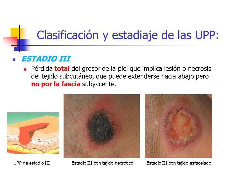 Clasificación y estadiaje de las UPP: ESTADIO III Pérdida total del grosor de la piel que implica lesión o necrosis del tejido subcutáneo, que puede e