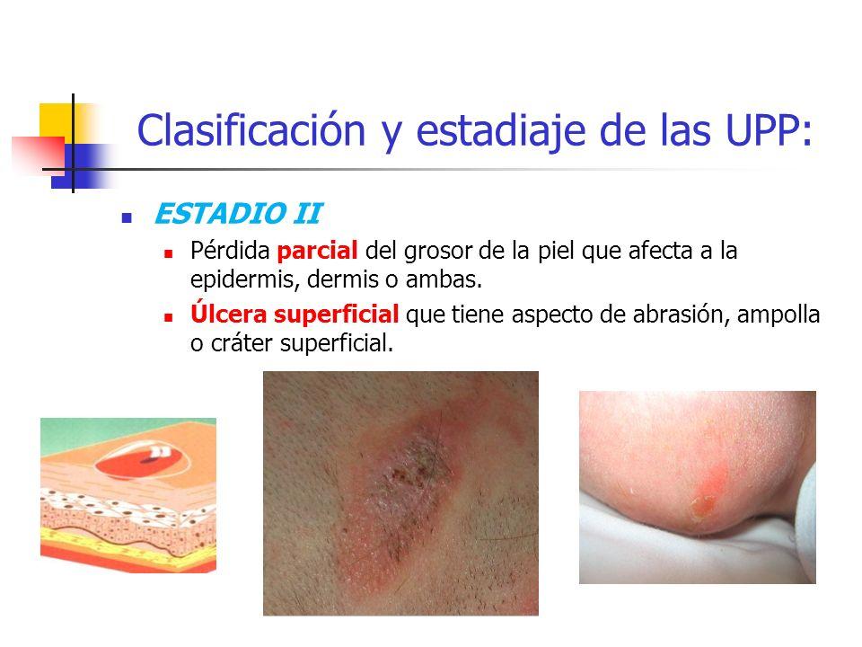 Clasificación y estadiaje de las UPP: ESTADIO II Pérdida parcial del grosor de la piel que afecta a la epidermis, dermis o ambas. Úlcera superficial q
