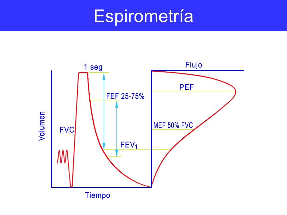 Espirometría