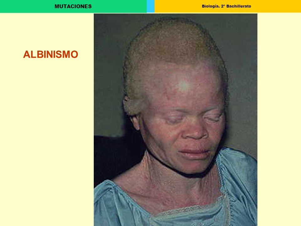 Biología. 2º Bachillerato MUTACIONES ALBINISMO