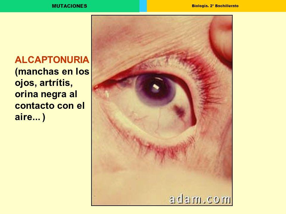 Biología. 2º Bachillerato MUTACIONES ALCAPTONURIA (manchas en los ojos, artrítis, orina negra al contacto con el aire... )