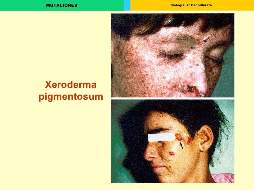 Biología. 2º Bachillerato MUTACIONES Xeroderma pigmentosum