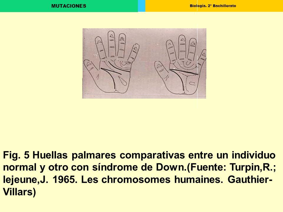 Biología. 2º Bachillerato MUTACIONES Fig. 5 Huellas palmares comparativas entre un individuo normal y otro con síndrome de Down.(Fuente: Turpin,R.; le