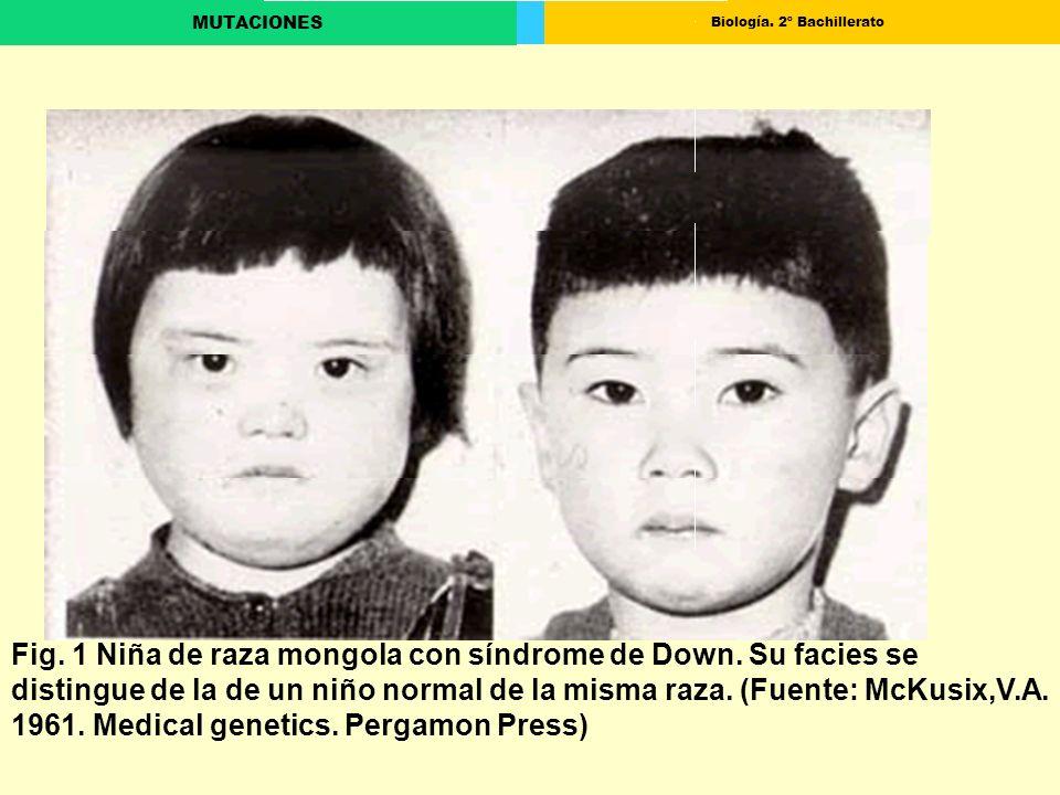 Biología. 2º Bachillerato MUTACIONES Fig. 1 Niña de raza mongola con síndrome de Down. Su facies se distingue de la de un niño normal de la misma raza